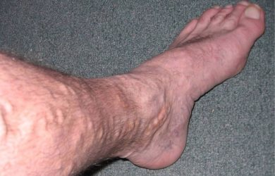 Varicose Veins: What are the Risk Factors and Treatment Options?