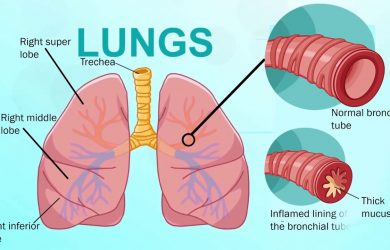Bronchitis Symptoms, Signs, Treatment, Prevention, Diagnosis and Types