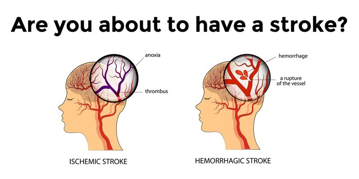 Signs and Symptoms of Strokes, Mild Strokes Symptoms, Stroke Warnings in Men and Women