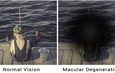 macular degeneration: Symptoms and Causes of Macular Degeneration