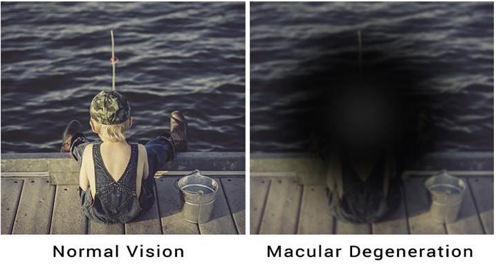 macular degeneration: Symptoms and Causes of Macular Degeneration