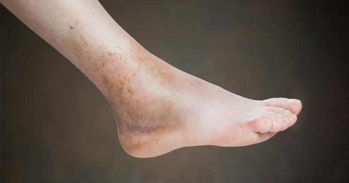 Homan's sign - a quick indicator of deep vein thrombosis