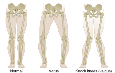 Valgus vs varus, knee, Elbow, Leg varus and valgus mnemonic?