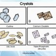 Urinary crystals, Crystals in urine symptoms, causes, treatment, diganosis, home remedies