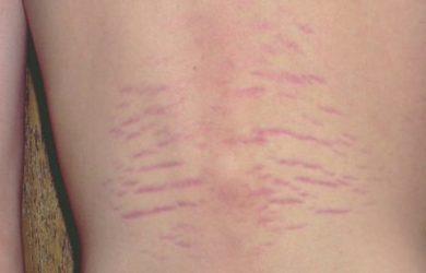 Bartonella Rash, Bartonella Rash Pictures, Bartonella Rash Symptoms, Causes, Treatment
