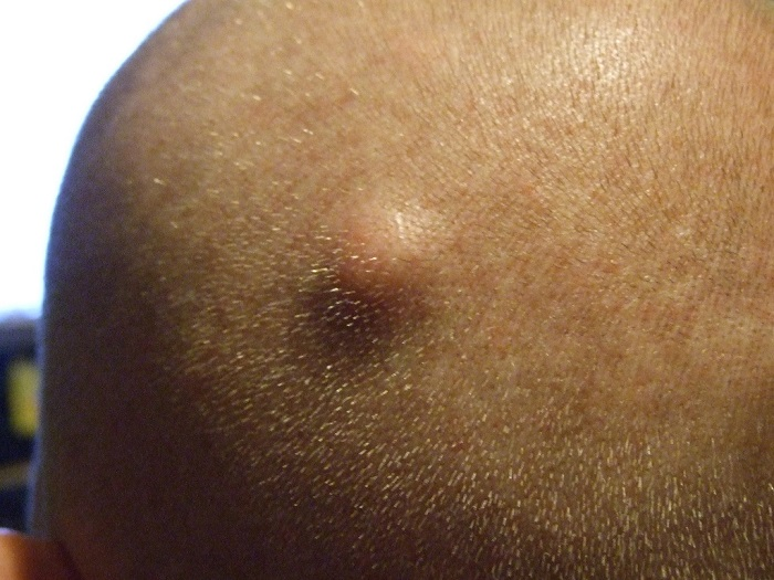 Sebaceous Cysts - What You Need to Know?