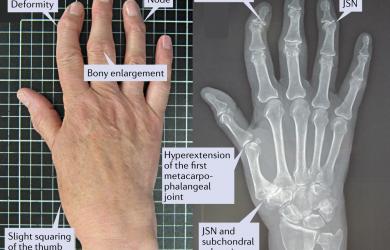 5 Ways to Detect Osteoarthritis
