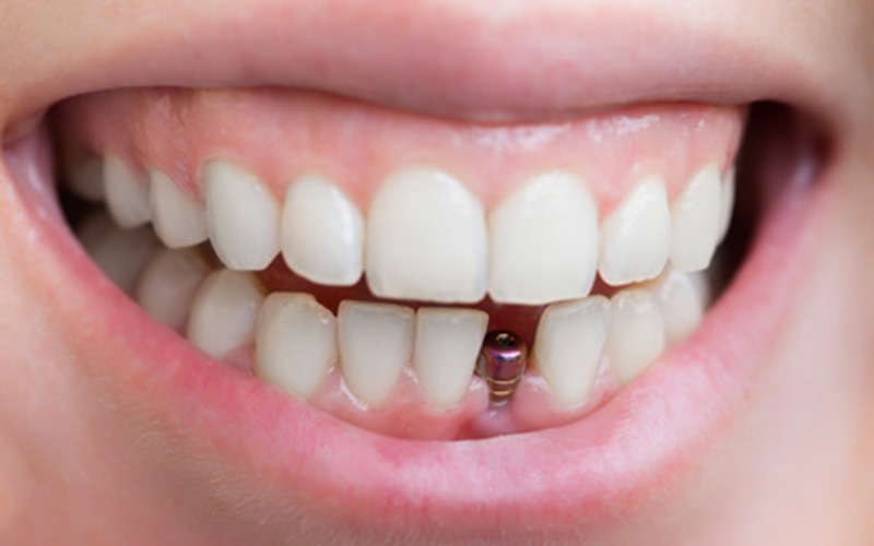 4 Benefits of Dental Implants and Why You Should Consider It