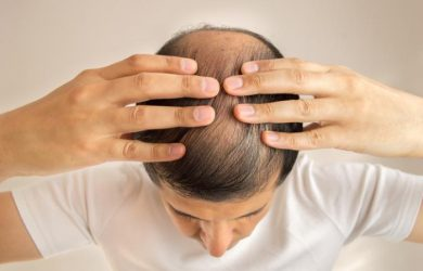 Hair Loss in Men: Here are Some Major Causes you Should Know
