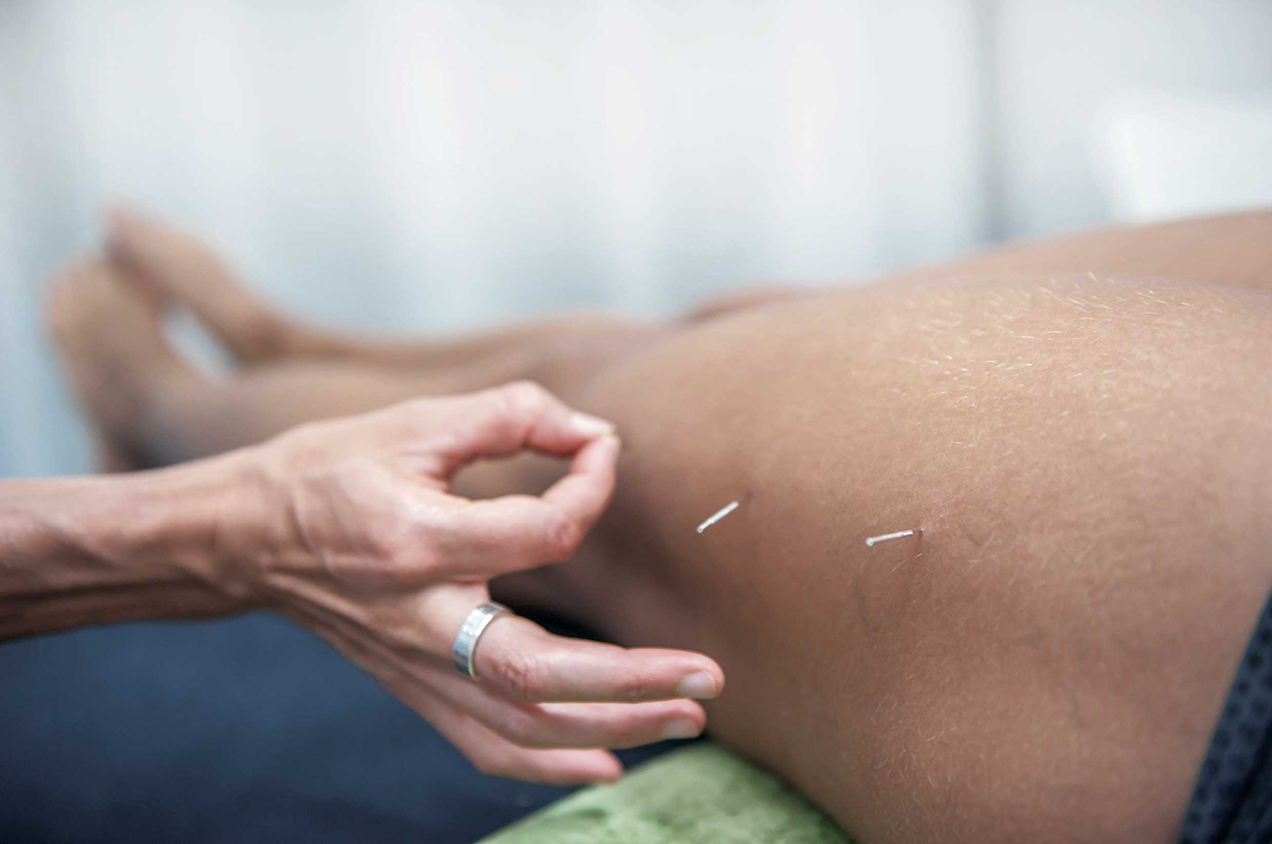 Benefits of Myotherapy that improves the quality of your life